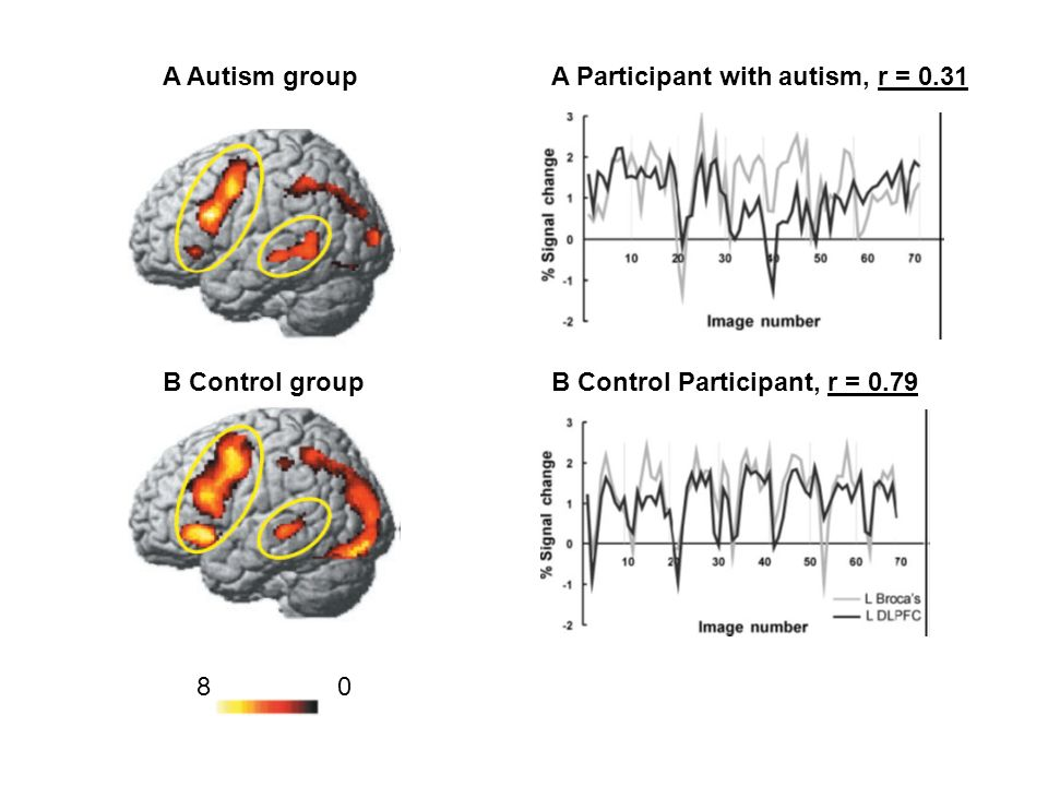 A Autism group A Participant with autism, r = 0.31. B Control group. B Control Participant, r = 0.79.