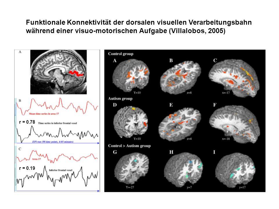 Funktionale Konnektivität der dorsalen visuellen Verarbeitungsbahn