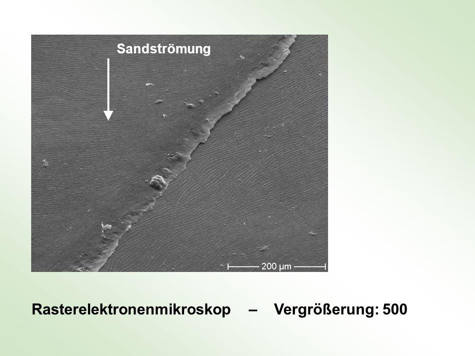 Rasterelektronenmikroskop – Vergrößerung: 500