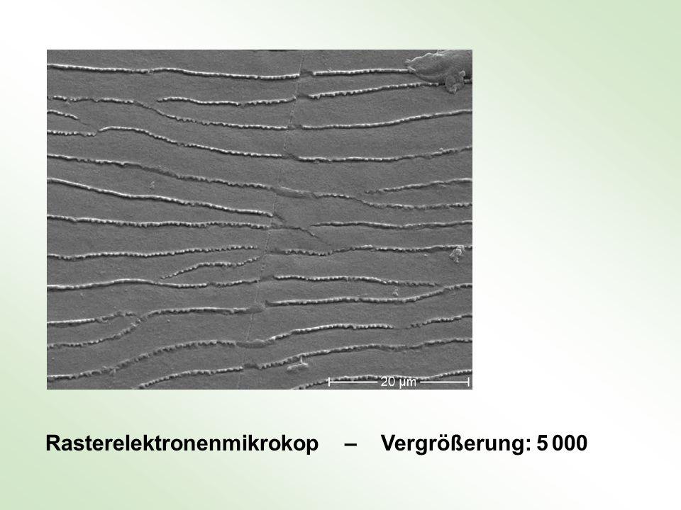 Rasterelektronenmikrokop – Vergrößerung: 5 000