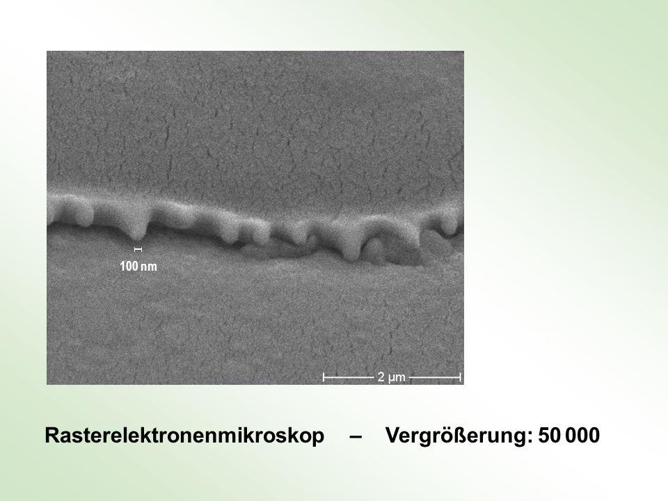 Rasterelektronenmikroskop – Vergrößerung: 50 000