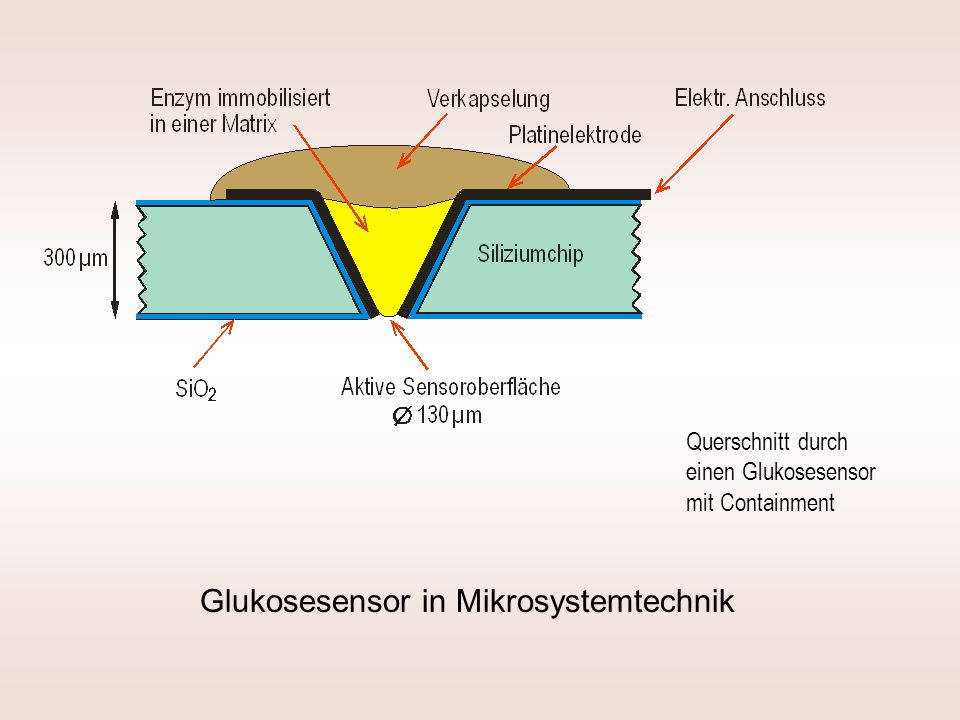 Glukosesensor in Mikrosystemtechnik