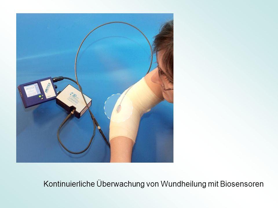 Kontinuierliche Überwachung von Wundheilung mit Biosensoren