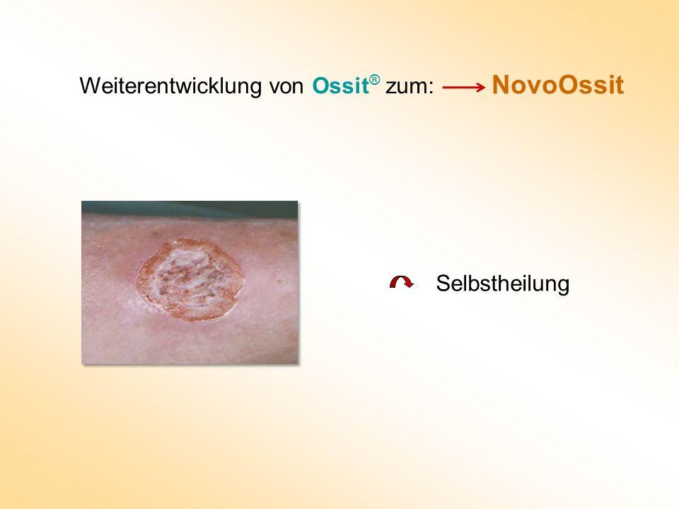 Weiterentwicklung von Ossit® zum:
