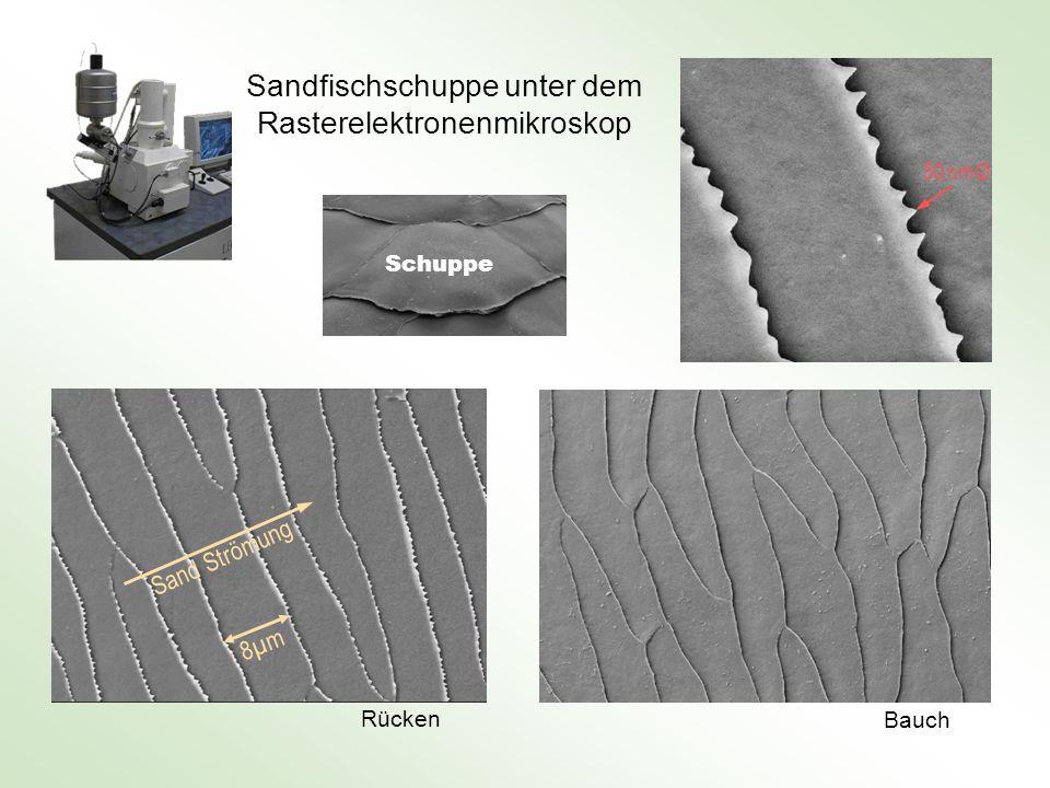 Sandfischschuppe unter dem Rasterelektronenmikroskop
