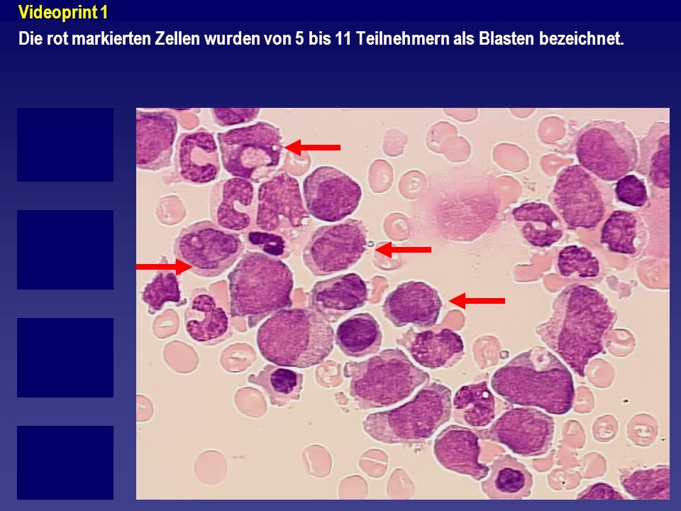 Videoprint 1 Die rot markierten Zellen wurden von 5 bis 11 Teilnehmern als Blasten bezeichnet.