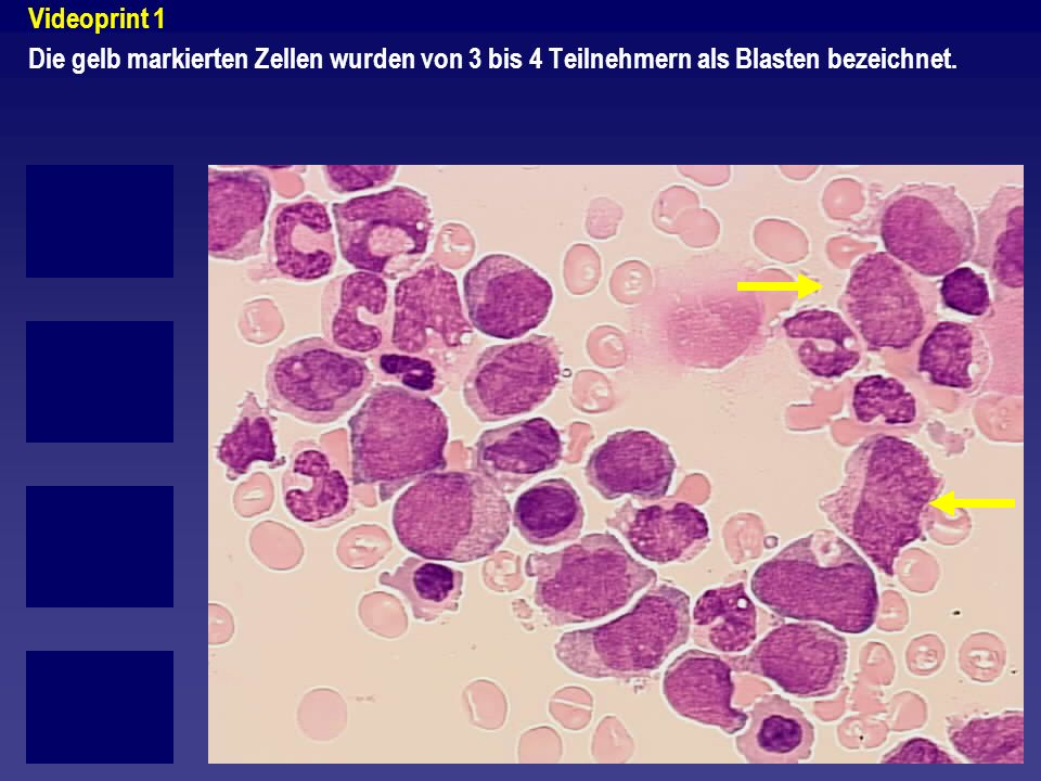 Videoprint 1 Die gelb markierten Zellen wurden von 3 bis 4 Teilnehmern als Blasten bezeichnet.