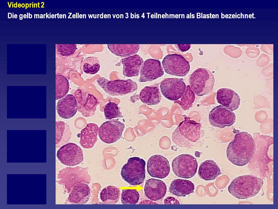 Videoprint 2 Die gelb markierten Zellen wurden von 3 bis 4 Teilnehmern als Blasten bezeichnet.