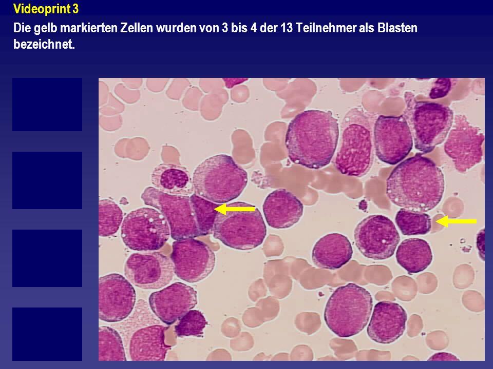 Videoprint 3 Die gelb markierten Zellen wurden von 3 bis 4 der 13 Teilnehmer als Blasten bezeichnet.