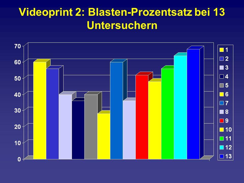 Videoprint 2: Blasten-Prozentsatz bei 13 Untersuchern
