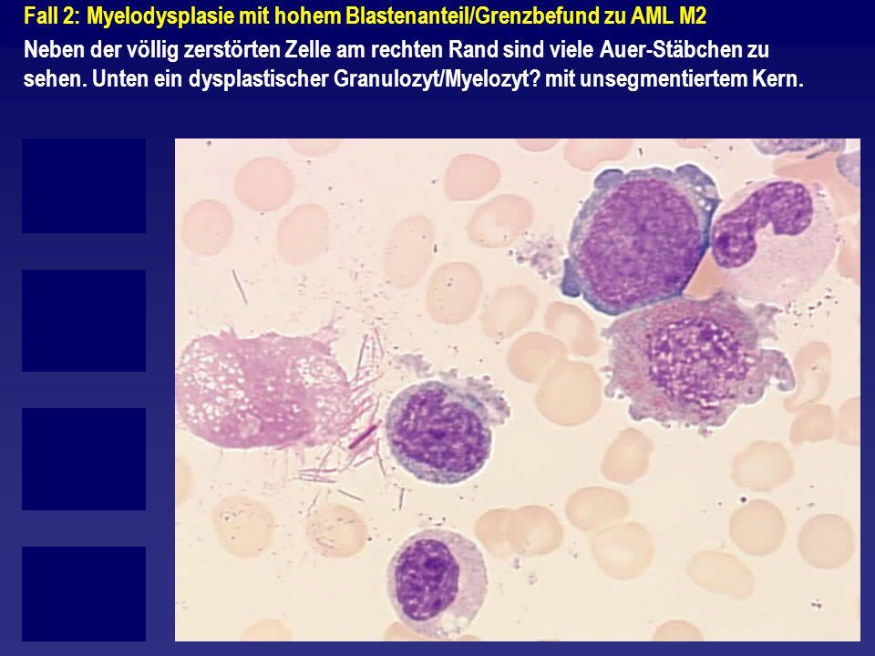 Fall 2: Myelodysplasie mit hohem Blastenanteil/Grenzbefund zu AML M2