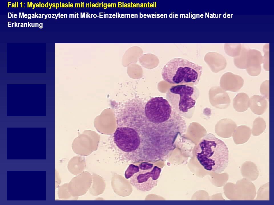 Fall 1: Myelodysplasie mit niedrigem Blastenanteil