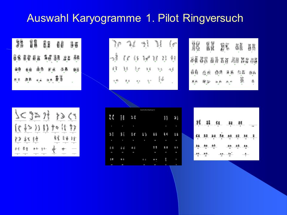 Auswahl Karyogramme 1. Pilot Ringversuch