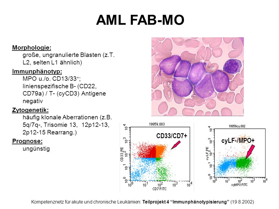 AML FAB-MO CD33/CD7+ cyLF-/MPO+
