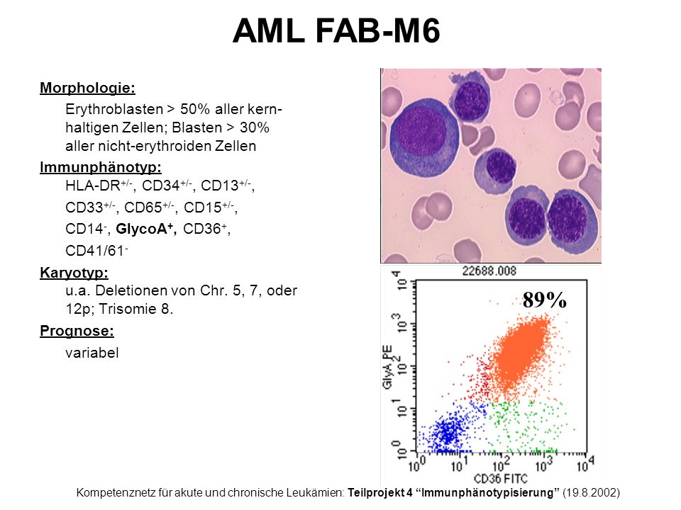 AML FAB-M6 89% Morphologie: