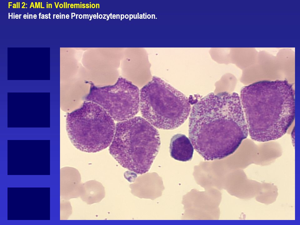 Fall 2: AML in Vollremission