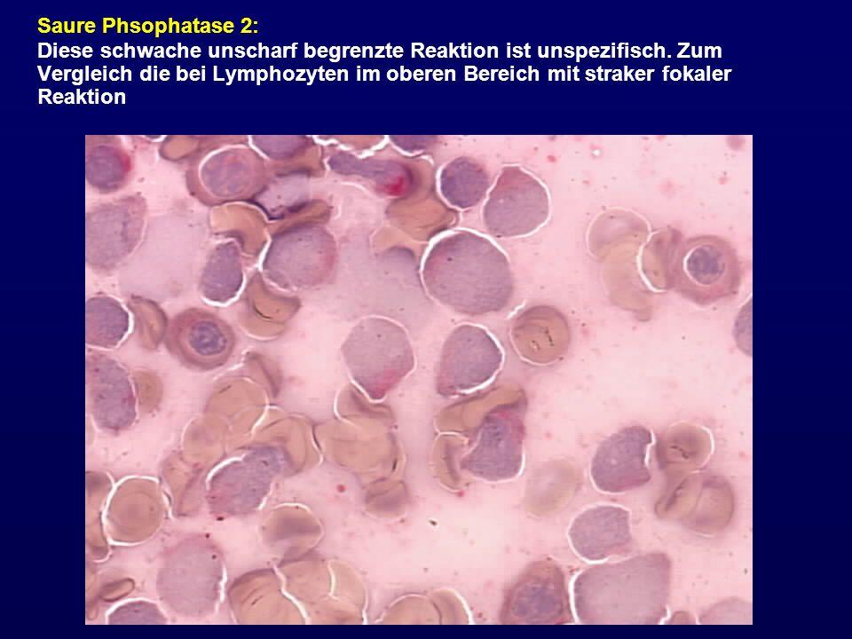 Saure Phsophatase 2: