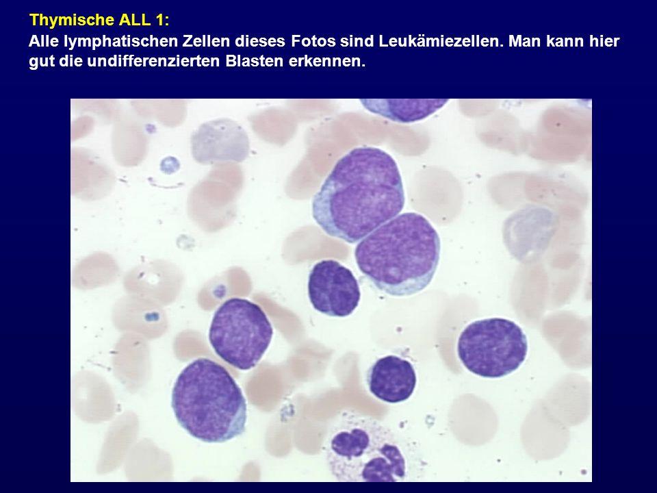 Thymische ALL 1: Alle lymphatischen Zellen dieses Fotos sind Leukämiezellen.