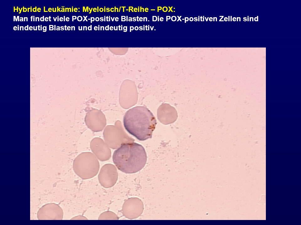 Hybride Leukämie: Myeloisch/T-Reihe – POX: