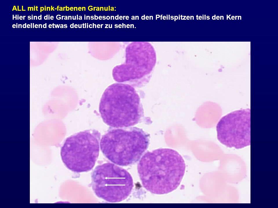 ALL mit pink-farbenen Granula: