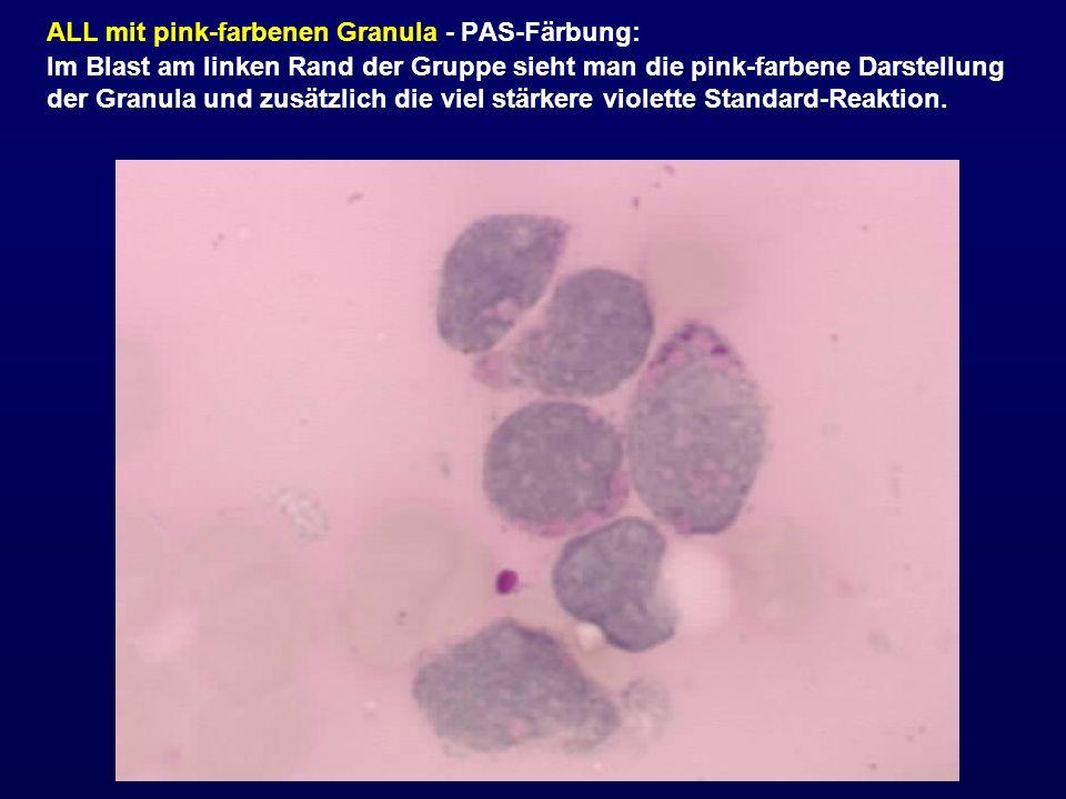ALL mit pink-farbenen Granula - PAS-Färbung: