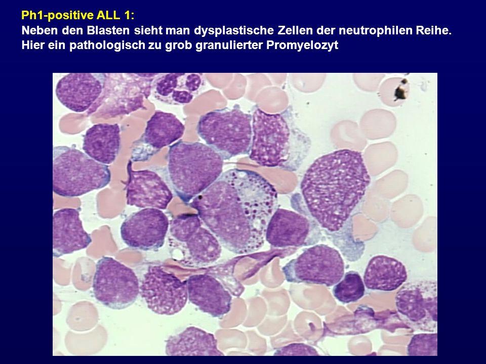 Ph1-positive ALL 1: Neben den Blasten sieht man dysplastische Zellen der neutrophilen Reihe.