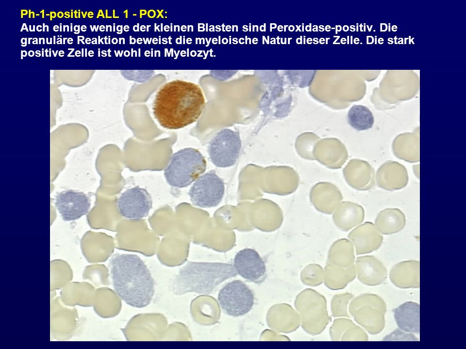 Ph-1-positive ALL 1 - POX: