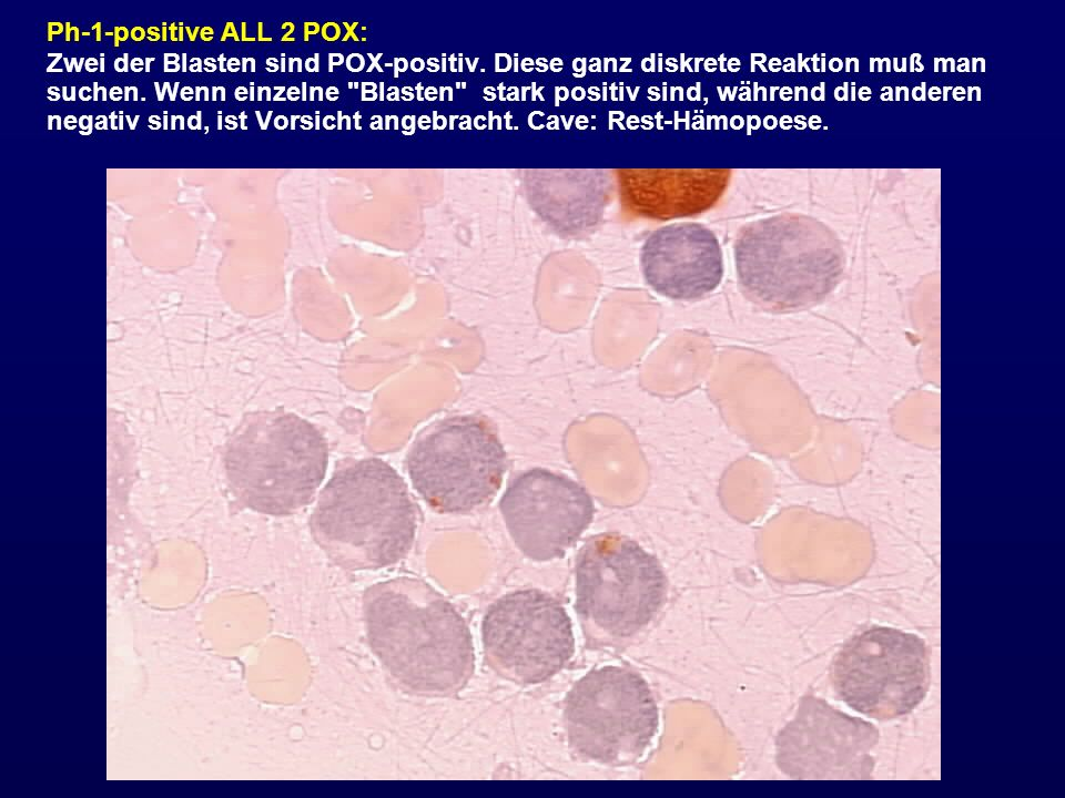 Ph-1-positive ALL 2 POX:
