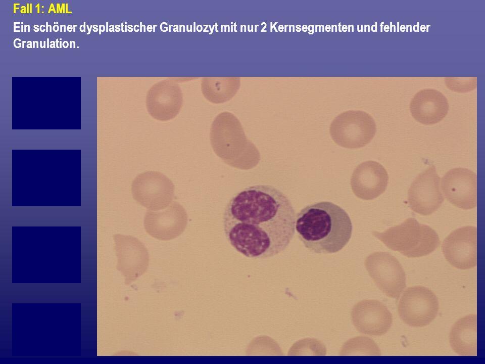 Fall 1: AML Ein schöner dysplastischer Granulozyt mit nur 2 Kernsegmenten und fehlender Granulation.