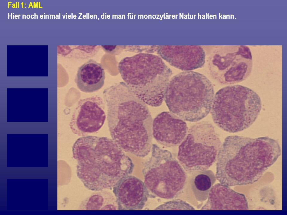 Fall 1: AML Hier noch einmal viele Zellen, die man für monozytärer Natur halten kann.