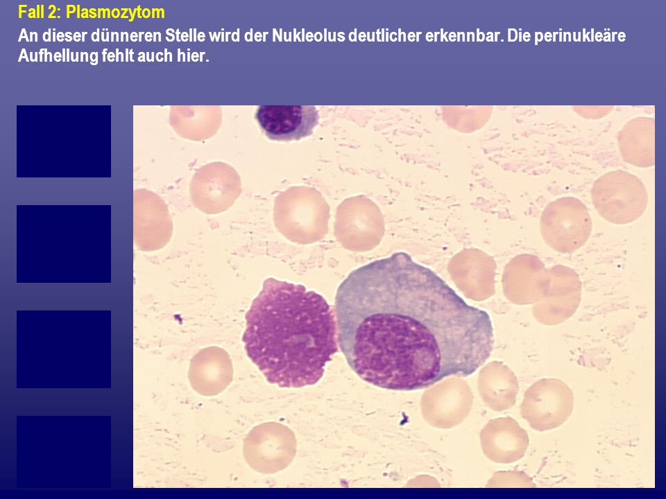 Fall 2: Plasmozytom An dieser dünneren Stelle wird der Nukleolus deutlicher erkennbar.
