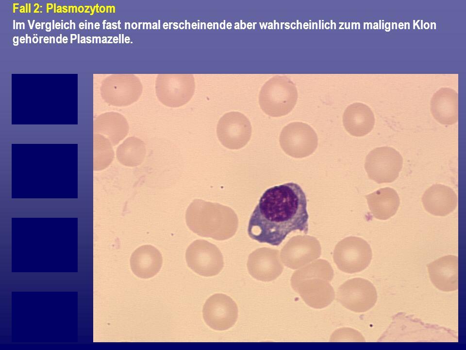 Fall 2: Plasmozytom Im Vergleich eine fast normal erscheinende aber wahrscheinlich zum malignen Klon gehörende Plasmazelle.