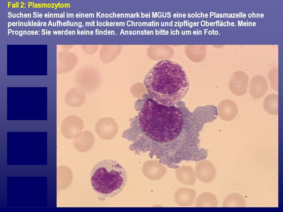 Fall 2: Plasmozytom