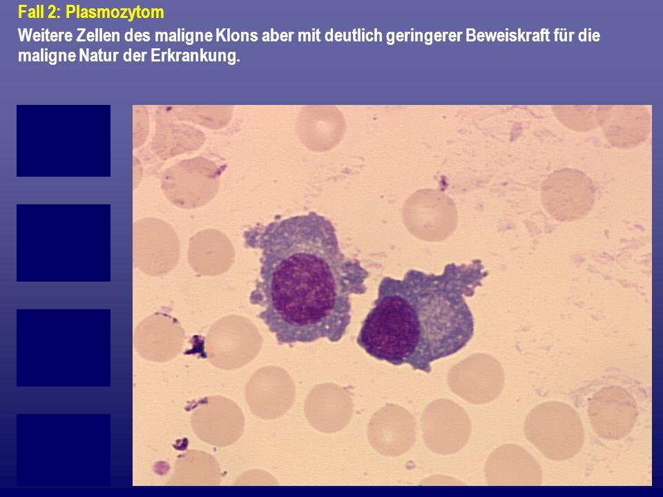 Fall 2: Plasmozytom Weitere Zellen des maligne Klons aber mit deutlich geringerer Beweiskraft für die maligne Natur der Erkrankung.