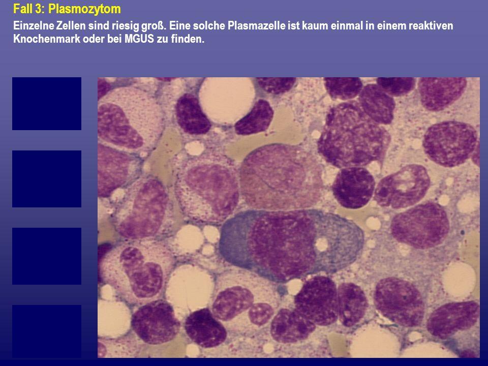 Fall 3: Plasmozytom Einzelne Zellen sind riesig groß.