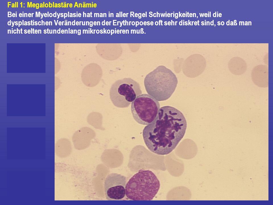 Fall 1: Megaloblastäre Anämie