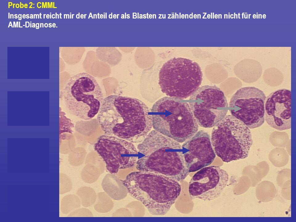 Probe 2: CMML Insgesamt reicht mir der Anteil der als Blasten zu zählenden Zellen nicht für eine AML-Diagnose.