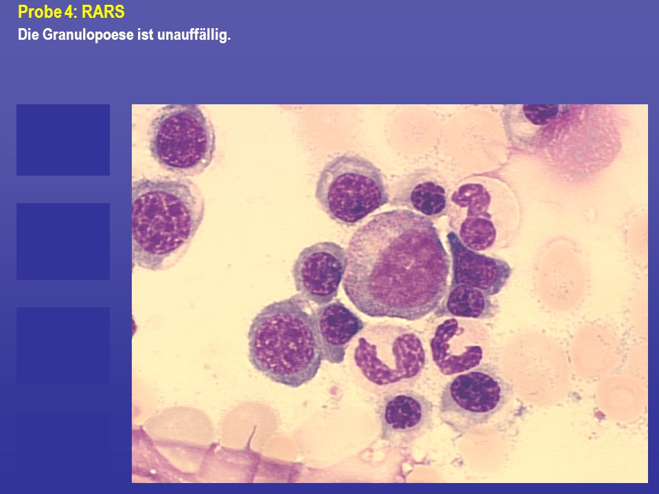 Probe 4: RARS Die Granulopoese ist unauffällig.