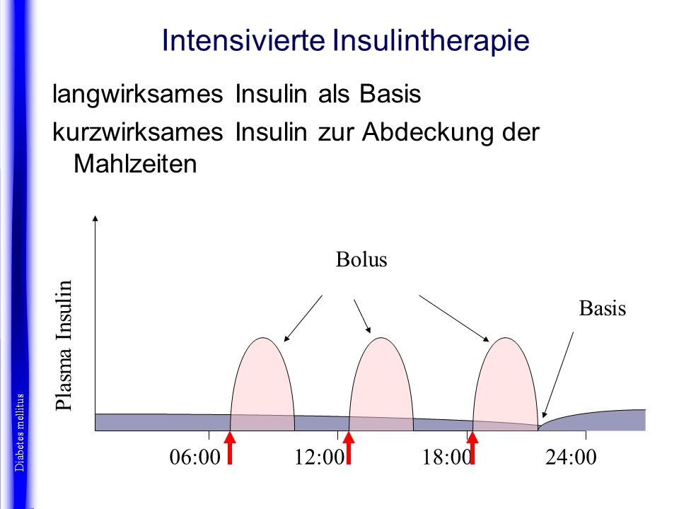 Intensivierte Insulintherapie