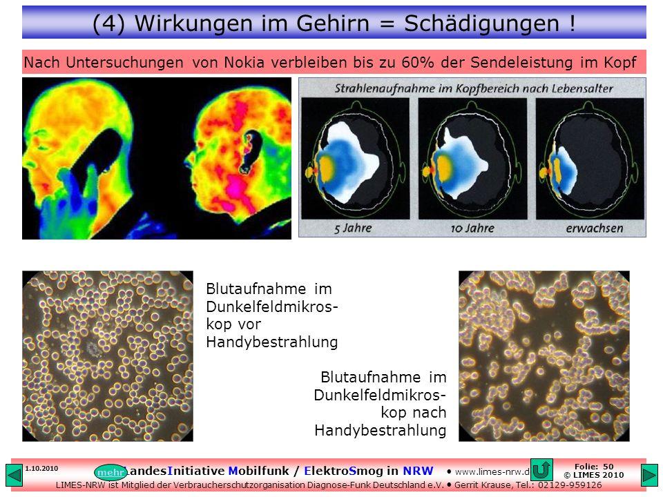 (4) Wirkungen im Gehirn = Schädigungen !