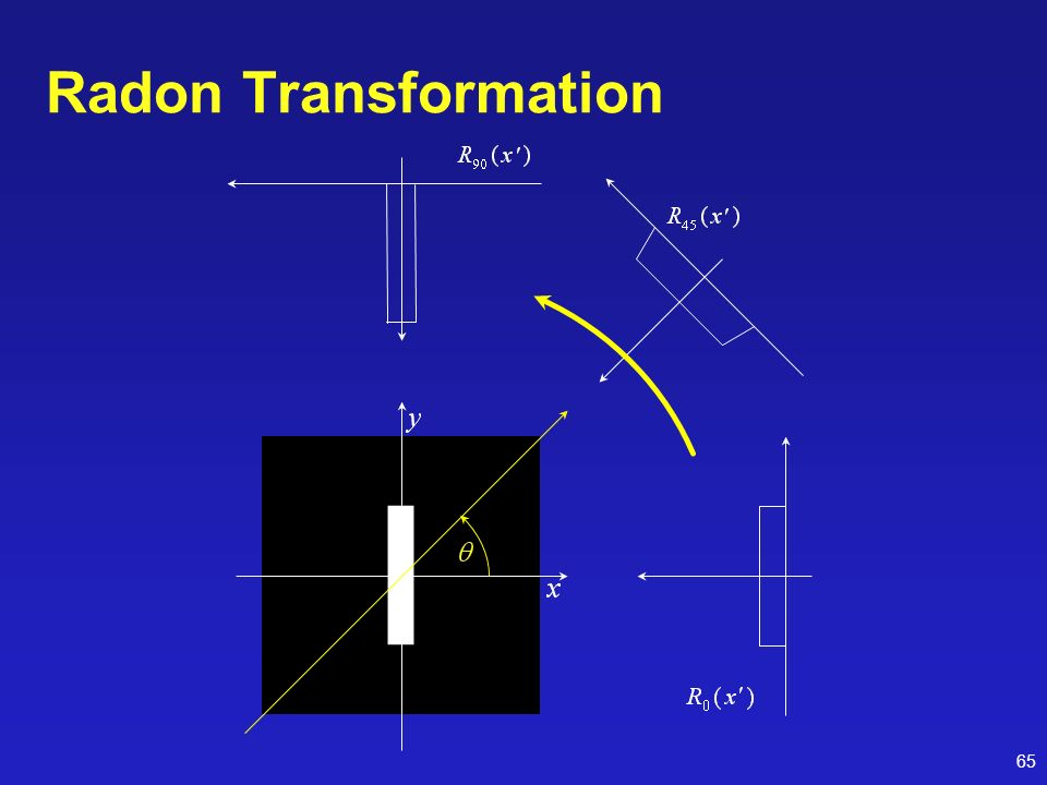 Radon Transformation