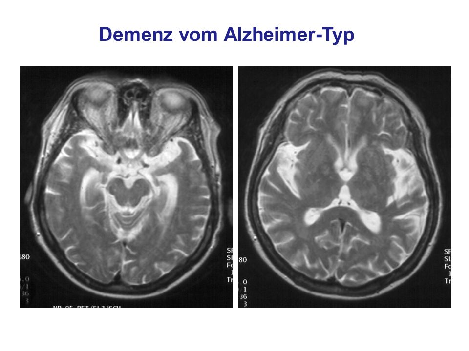 Demenz vom Alzheimer-Typ