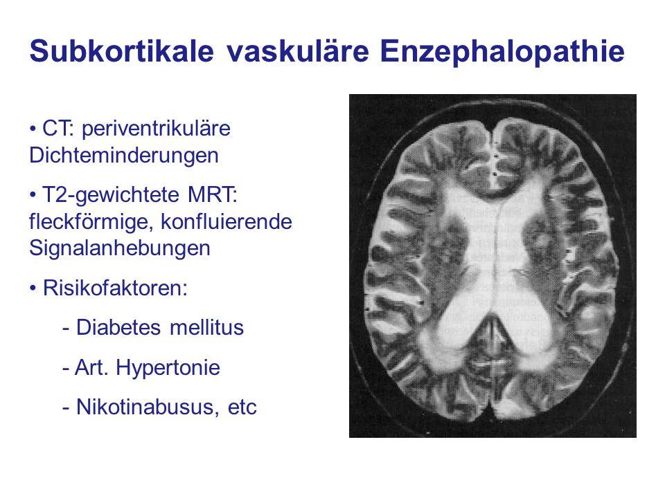 vaskuläre enzephalopathie verlauf