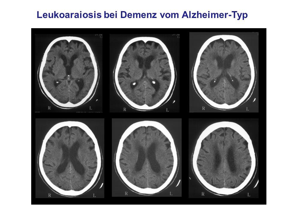 Leukoaraiosis bei Demenz vom Alzheimer-Typ