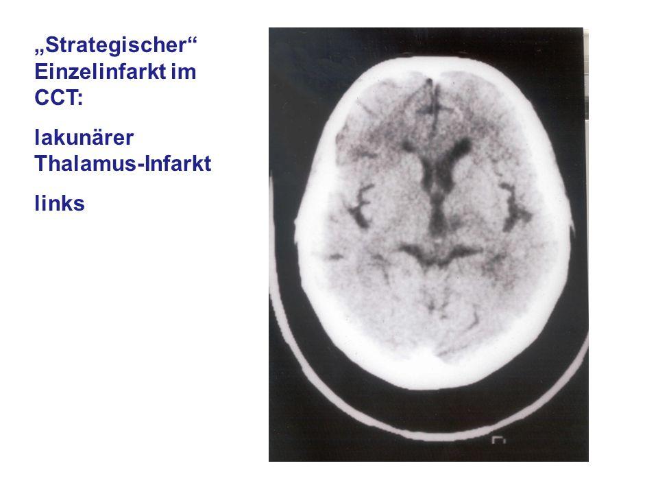 """""""Strategischer Einzelinfarkt im CCT:"""
