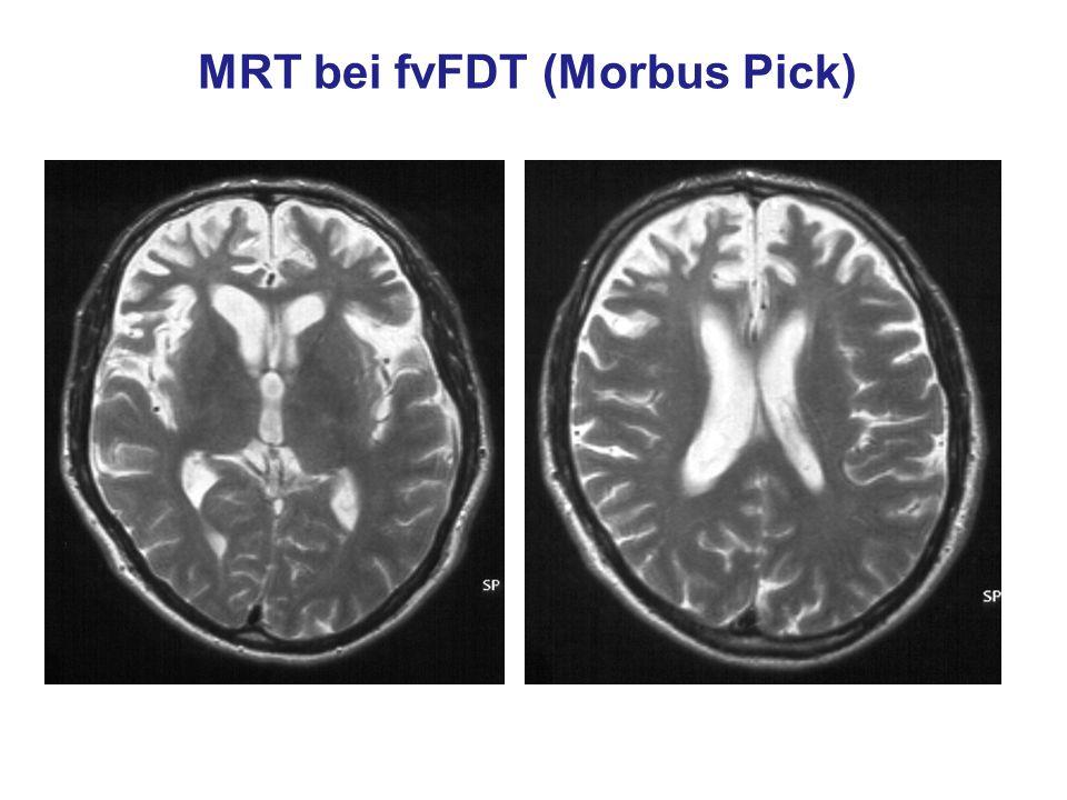 MRT bei fvFDT (Morbus Pick)