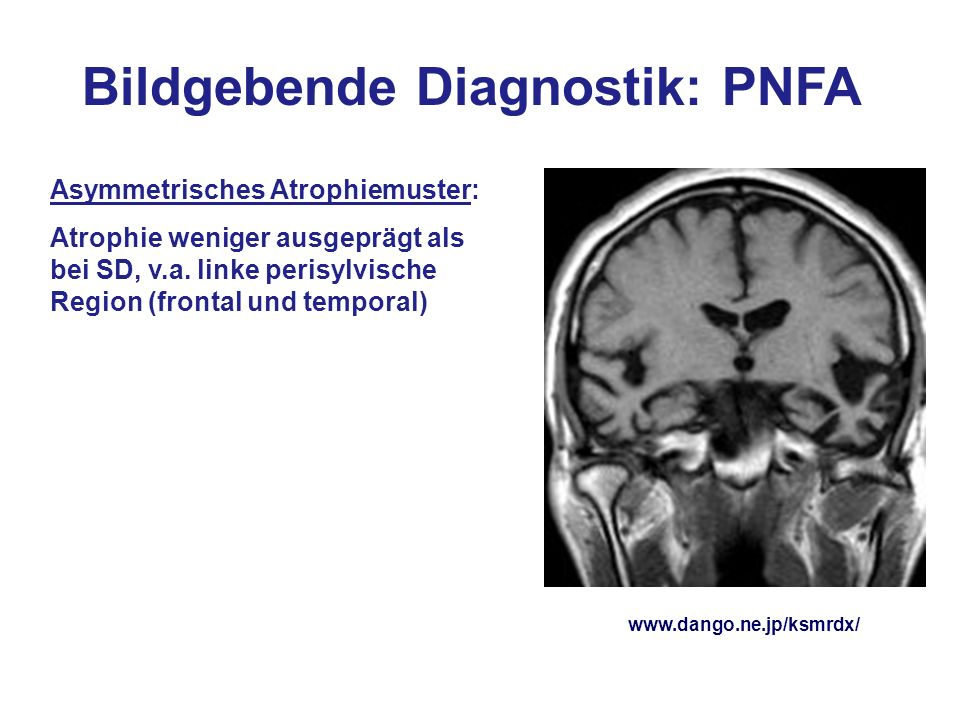 Bildgebende Diagnostik: PNFA