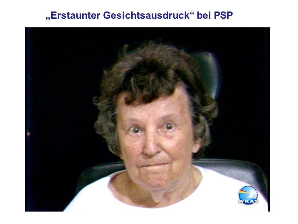 """""""Erstaunter Gesichtsausdruck bei PSP"""