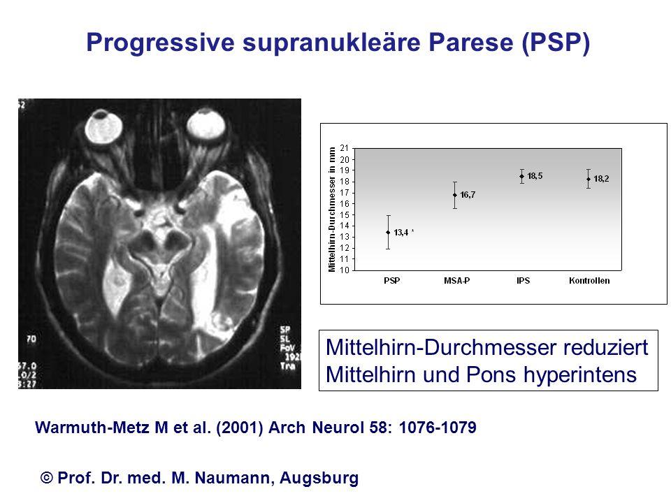 Progressive supranukleäre Parese (PSP)