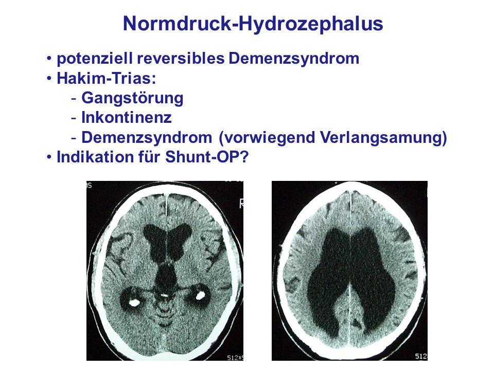 Normdruck-Hydrozephalus
